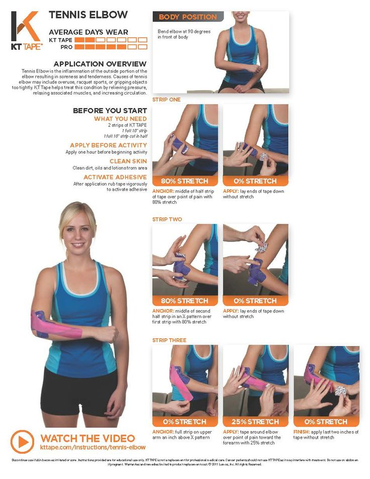 Tennis Elbow is the inflammation of the outside portion of the elbow resulting in soreness and tenderness. Causes of tennis elbow may include overuse, racquet sports, or gripping objects too tightly. KT Tape helps treat this condition by relieving pressure, relaxing associated muscles, and increasing circulation