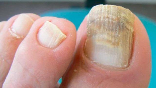 Los hongos en las uñas no son más que infecciones que aparecen de color amarillento y con grosor. Esto también puede afectar a otros lugares del cuerpo como son los pies, las manos y en las ingles. Anuncios Hoy te vamos a presentar cómo hacer un remedio casero que va a destruir esos molestos hongos …