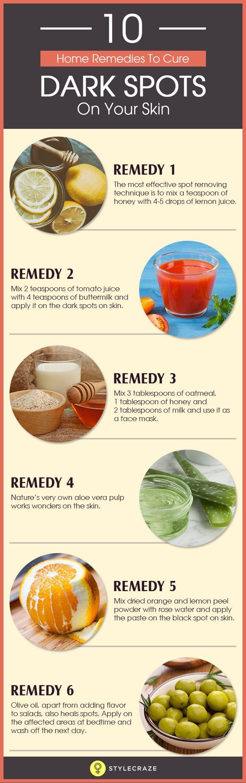 10 Home Remedies zur Behandlung von dunklen Flecke…