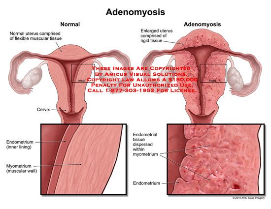 Adenomyosis Thank You For This Clear Explanation My