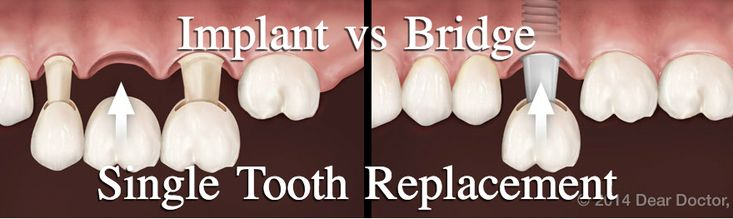 While #DentalImplants and bridges achieve similar results, they are two very different procedures. Check out our blog for a full comparison!  #ThousandOaksDentist