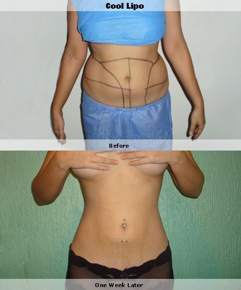 cool lipo before and after