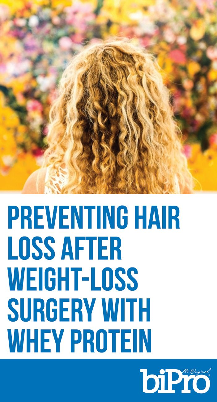 Whey Protein can Help Prevent Hair Loss after Weight-Loss Surgery