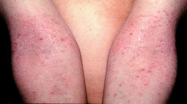 Atopic Dermatitis: Causes, Symptoms & Treatment