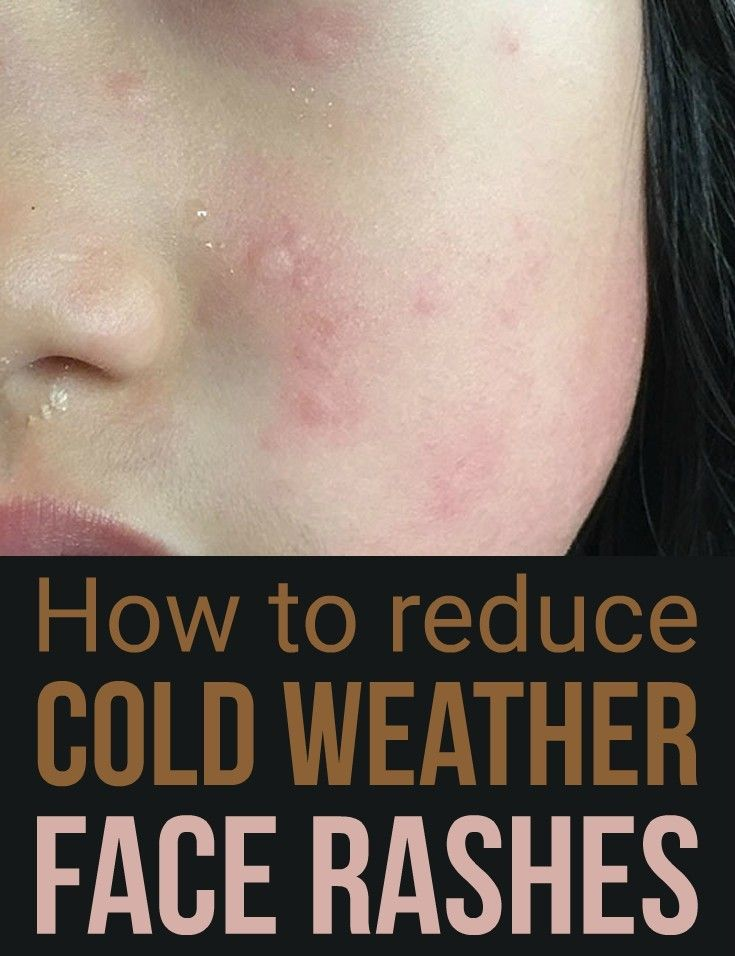 How to reduce cold weather face rashes
