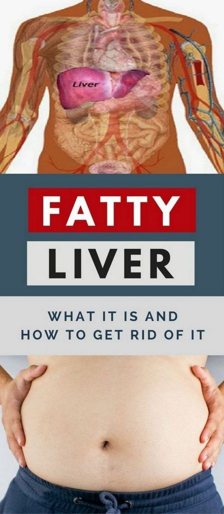 Clean Your Fatty Liver With This Beverage! (RECIPE)