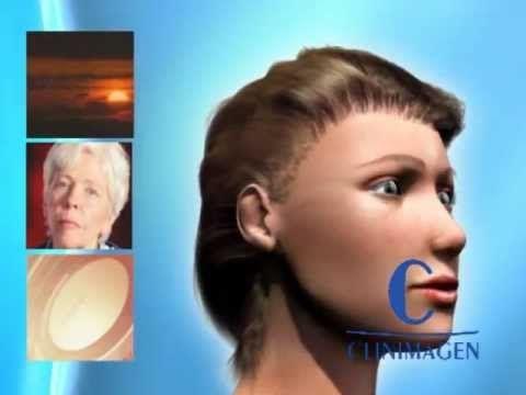 ¿Te molestan las #arrugas? Aquí te dejamos información sobre #liftingfacial.