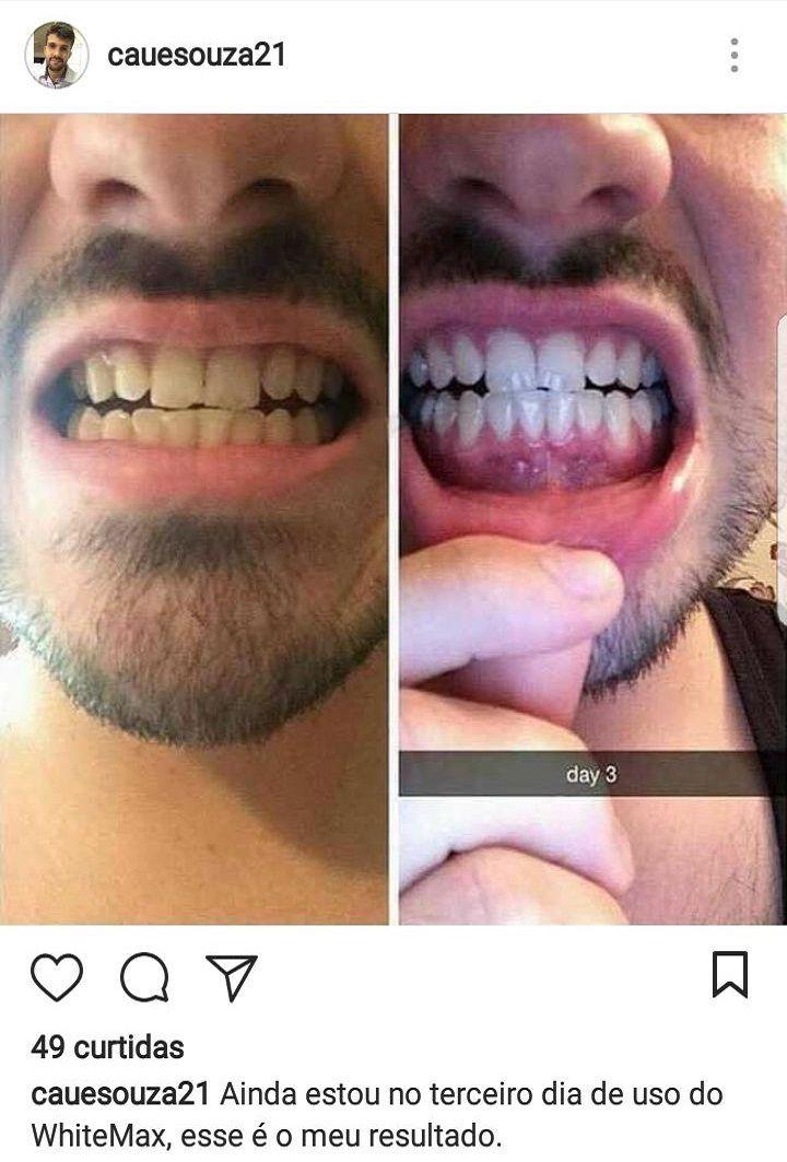 Whitemax Clareador Dental 100 Natural White Max Salud