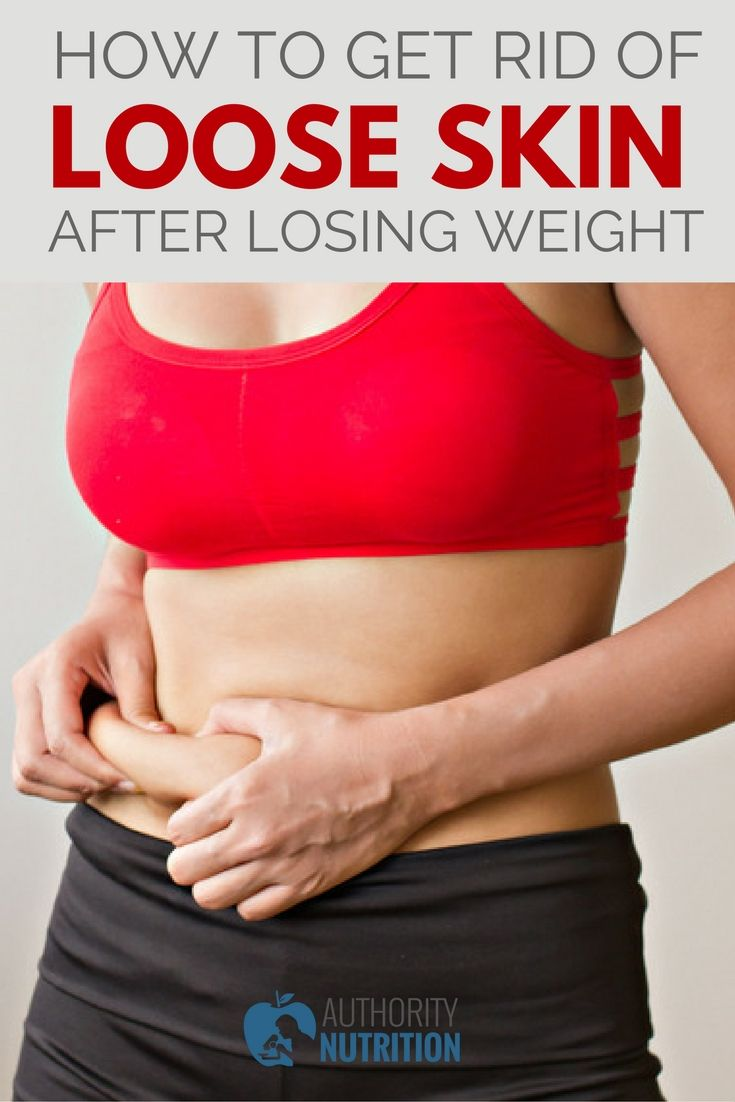 excess skin after weight loss nhsn