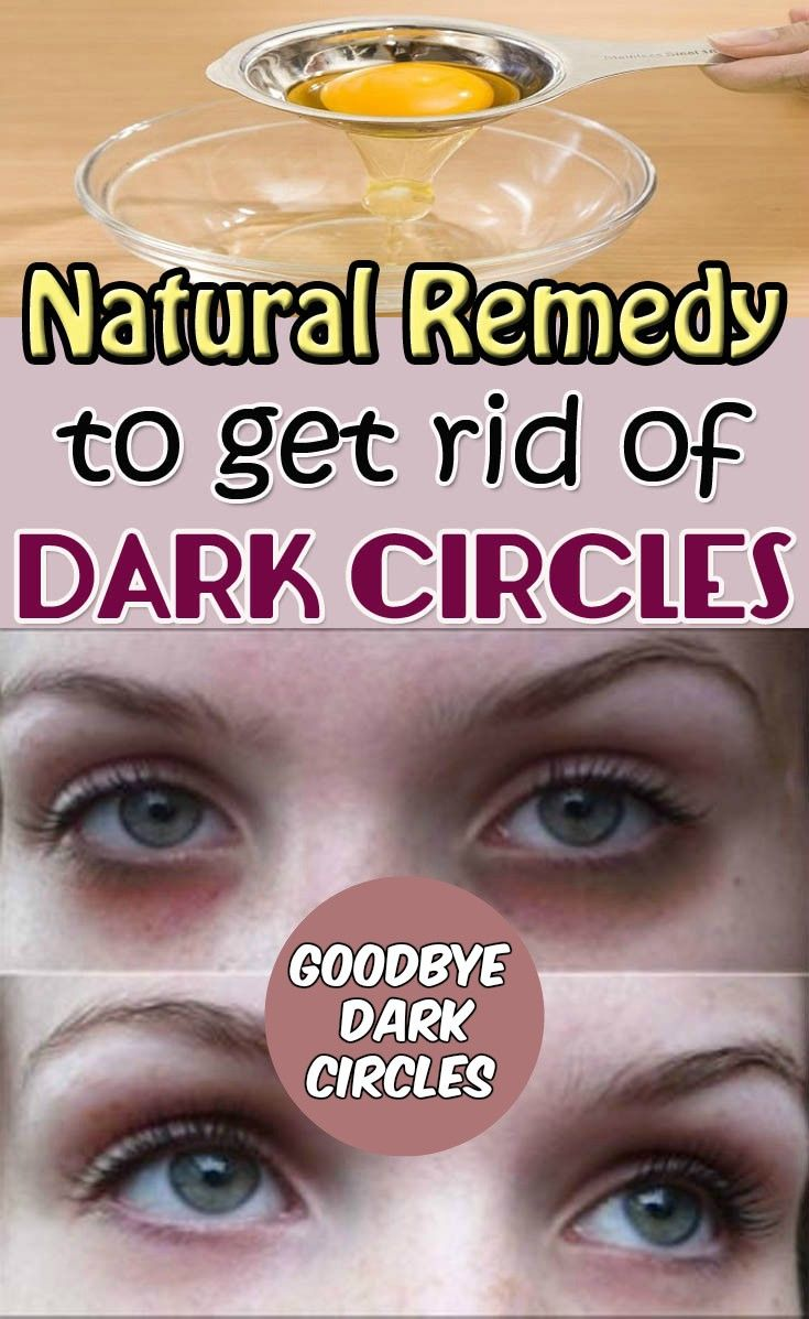 how to get rid of dark circles around your eyes