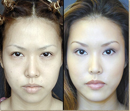 Asian Blepharoplasty Before And After Cosmetic Surgery