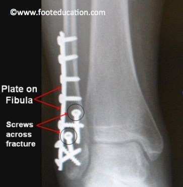 Ankle Fracture ORIF- Figure 2