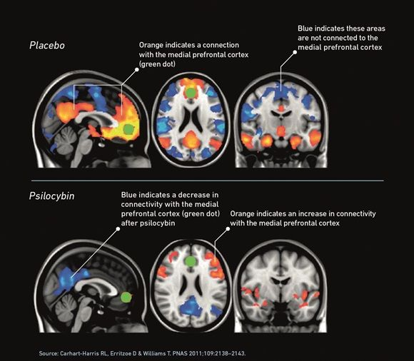 I love my field! psychedelics as addiction therapy. the DMN is made of brain 'hubs', including the posterior cingulate cortex and the medial prefrontal cortex (green dot). The network is active during introspective thought, self-reflection and ingrained patterns of behaviour. In the brains of patients who