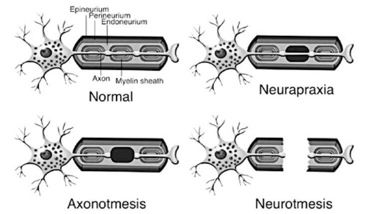 Neurapraxia = nerve contusion Axonotmesis = crushed nerve