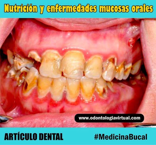 nutrición-salud-bucal