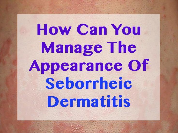 Natural Remedies For Seborrheic Dermatitis Using Essential Oils
