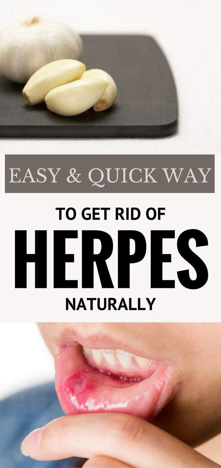 Best Way To Get Rid Of Razor Bumps Naturally