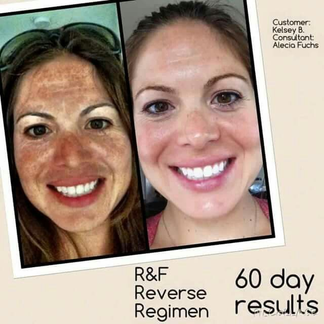 Have you heard??? We have a NEW Reverse regimen - our Lightening regimen!! It's perfect for stubborn dark marks and sun damage! Winter is the perfect time to take care of it all!! Message me and let me tell you all about it!