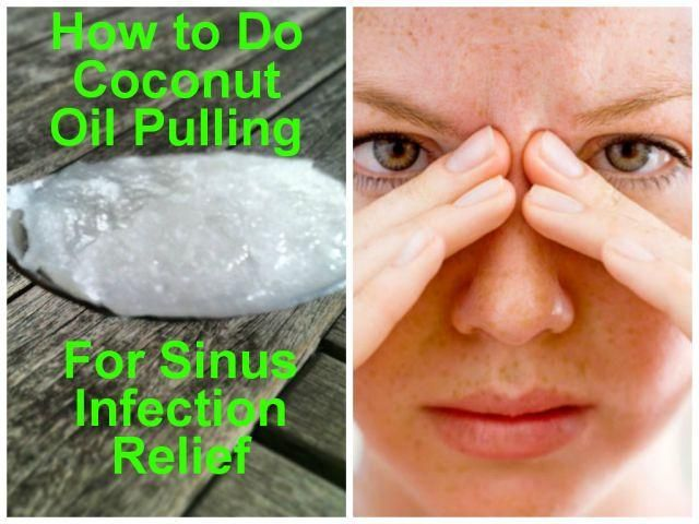 How to Do Coconut Oil Pulling for Sinus Infection Relief. Discover the best kept secrets to effectively get relief from sinus infection... http://www.amazingherbsandoils.com/simple-but-effective-coconut-oil-pulling-for-sinus-infection-relief/