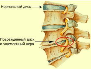 Остеохондроз— распространенное заболевание, при котором возникает дистрофия ткани межпозвоночных дисков, в результате чего позвоночник теряет свойственную ему гибкость. Спровоцировать начало этого заболевания может чрезмерная нагрузка на позвоночник, травма в результате …