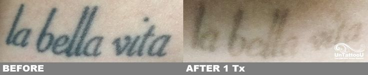 Great results after one treatment with PicoSure and our laser tattoo removal specialists!  #lasertattooremoval #tattooremoval #removetattoo #tattooregret #tattooremovalspecialists