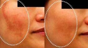 Elimine manchas de melasma e hiperpigmentação em pouco tempo!! Difíceis de tirar, as manchas na pele podem ter diversas causas. A mais comum é de cor marrom, o famoso melasma ou hiperpigmentação, q…
