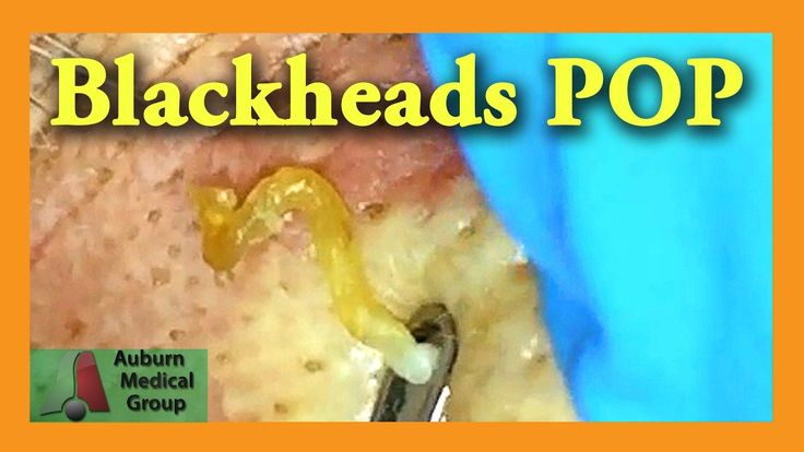 Balckheads pop right out, over and over, as Dr. Mark Vaughan uses a comedone extractor for blackhead removal.  Seeing a doctor is not necessary to learn how to get rid of blackheads, but it makes for an interesting pimple popping video.  Be sure to also see videos by Dr. Pimple Popper on her...  https://www.crazytech.eu.org/blackheads-pop-auburn-medical-group/ #pimplespopping