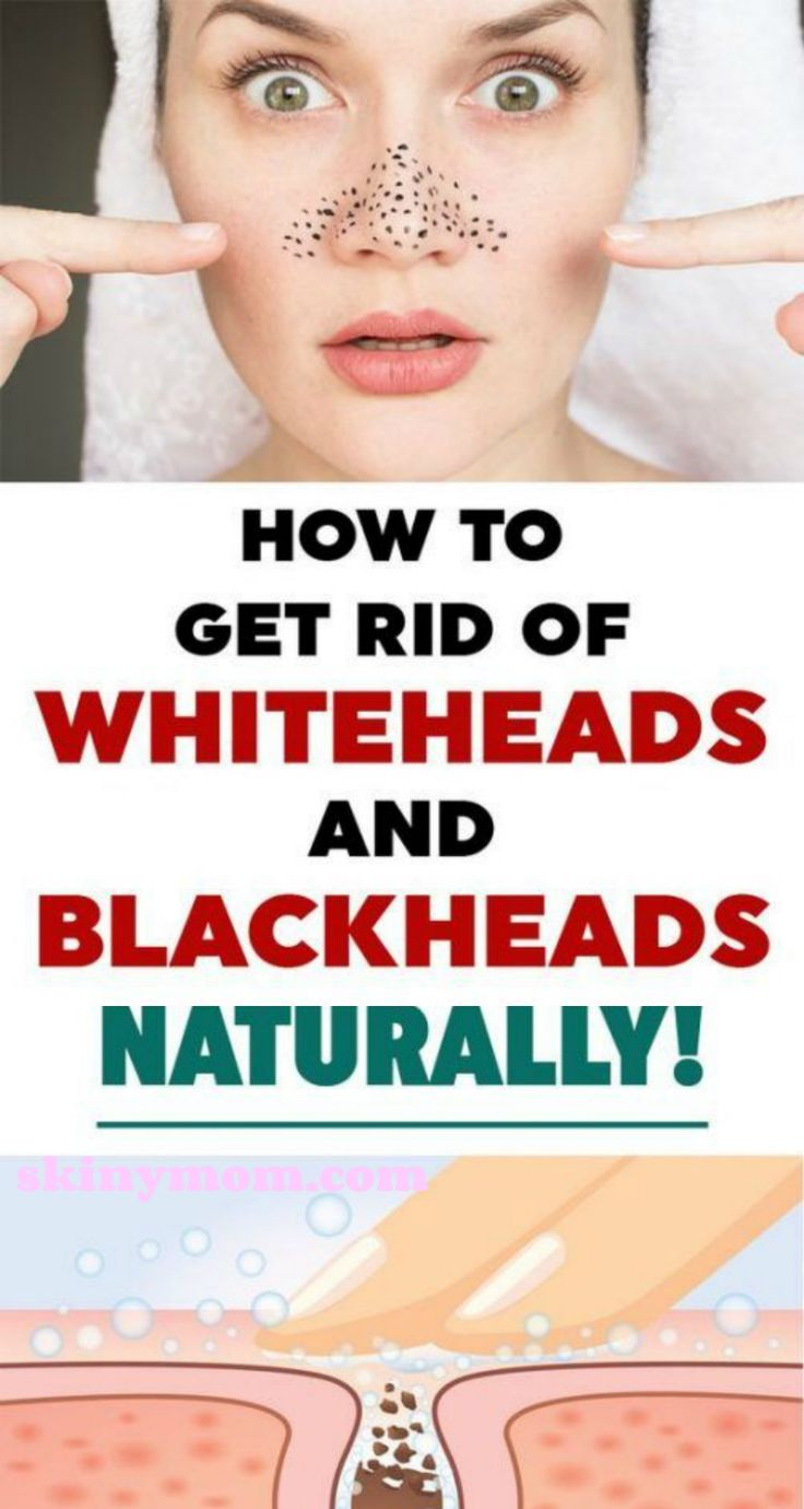 How To Get Rid Of Blackheads Naturally!! – Skiny M…