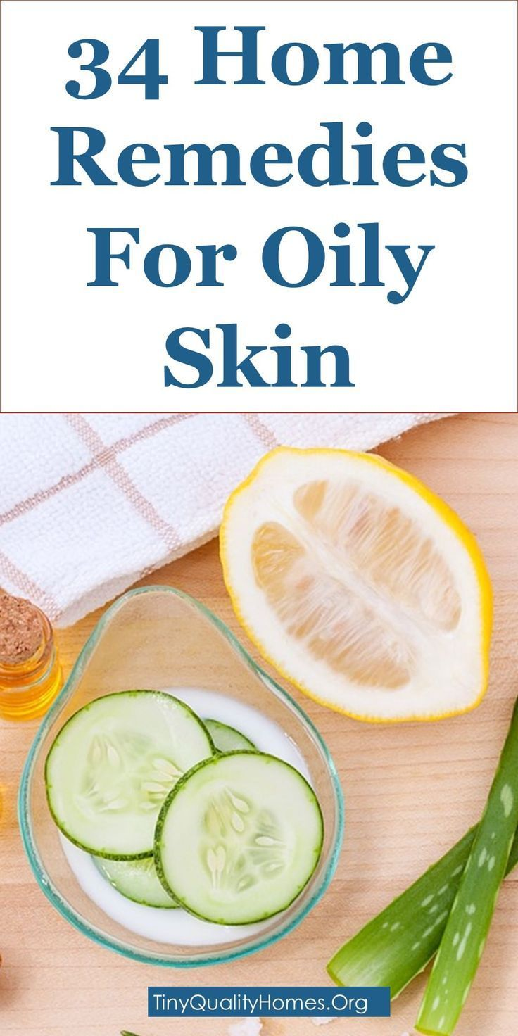 How To Get Rid Of Oily Skin – 34 Home Remedies