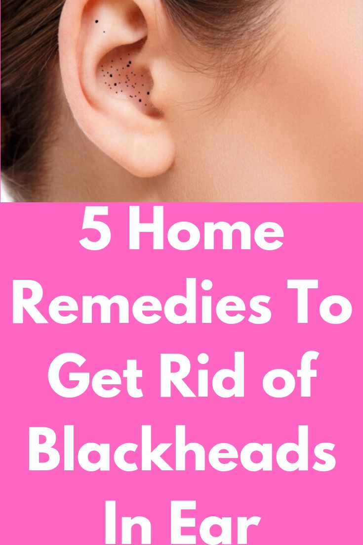 5 Home Remedies To Get Rid of Blackheads In Ear