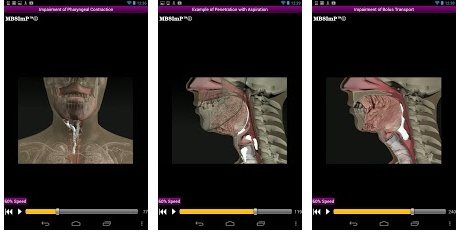 Dysphagia ($9.99) This dysphagia swallow physiology app is ideal for speech-language pathologists and other medical professionals. The app features custom-designed, state-of-the-art, MBSImP animations depicting adult swallow physiology. Includes normal swallow physiology and also examples of varying physiologic impairments of the swallow. Video controls allow for slow motion, pause, and frame-by-frame forward and reverse. Visual tool to aid professionals with patient and family education.
