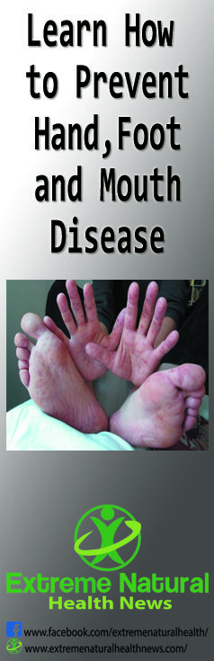 Learn How to Prevent Hand-Foot-and-Mouth Disease