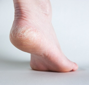 Dry, Cracked Feet: Treatment, Causes, and Home Remedies