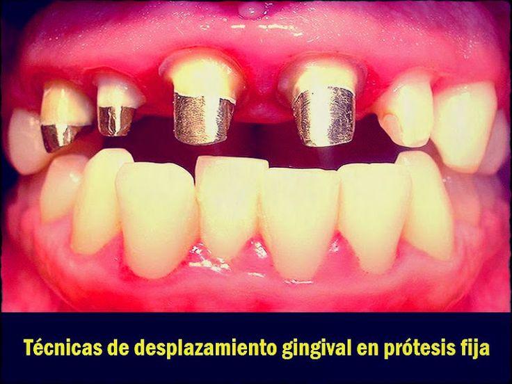 PDF: Técnicas de desplazamiento gingival en prótesis fija | OVI Dental