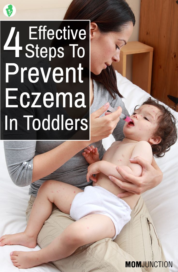 4 Effective Steps To Prevent Eczema In Toddlers