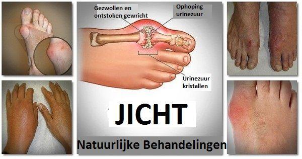 Jicht is een vorm van artritis waar nog niet zoveel over bekend is. Het blijft op sommigen vlakken nog een mysterie hoe mensen dit krijgen. Wat we wel weten is dat de pijn in de gewrichten, die wordt veroorzaakt door jicht, een gevolg is van ophoping van urinezuur in het bloed. Deze ophoping ontstaat wanneer …