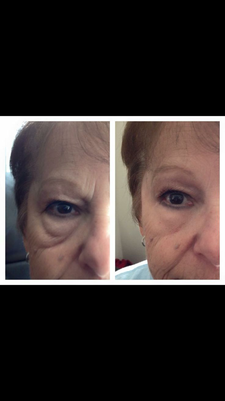 Before and after with Instantly Ageless.  Contact me now to get your own amazing results! Foreveryoung1214@yahoo.com www.rockyouryouth.com