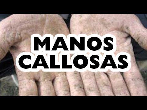 MANOS CALLOSAS TRATAMIENTO IDEAL EN 9 PASOS - YouTube