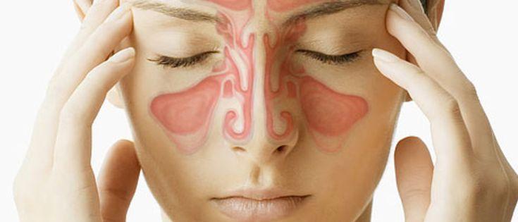 A infecção nos seios perinasais, popularmente conhecida como sinusite, afeta várias pessoas de forma aguda ou crônica, causando dores intensas tanto na cabeça quanto na face. Os ossos ao redor