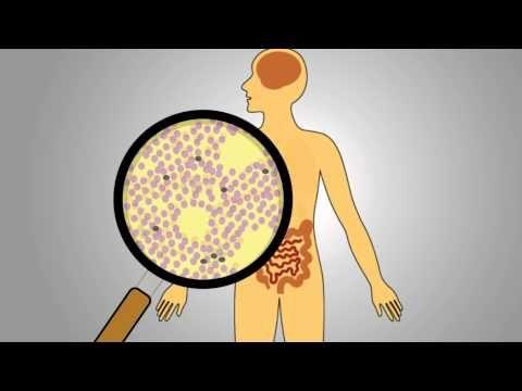 Acute Radiation Syndrome