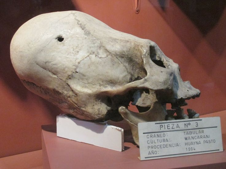 Massive Elongated Humanoid Skulls Of Oruro Bolivia