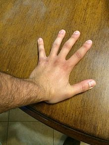 Carpal tunnel syndrome - Wikipedia