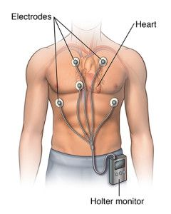 Holter Monitor Market By Product Type and End User - Global Industry Insights, Trends, Outlook, and Opportunity Analysis, 2017-2025