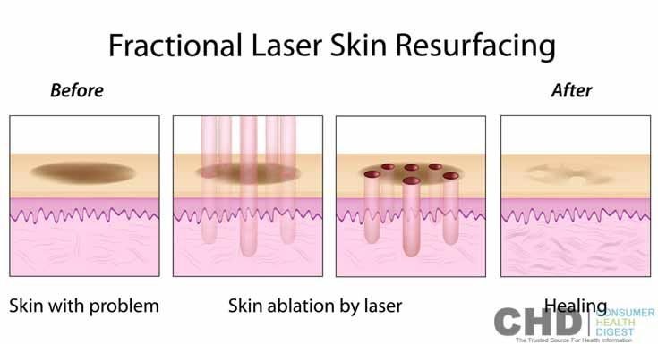 Fractional Laser Skin Resurfacing - Fact, Benefits, Risks and Recovery