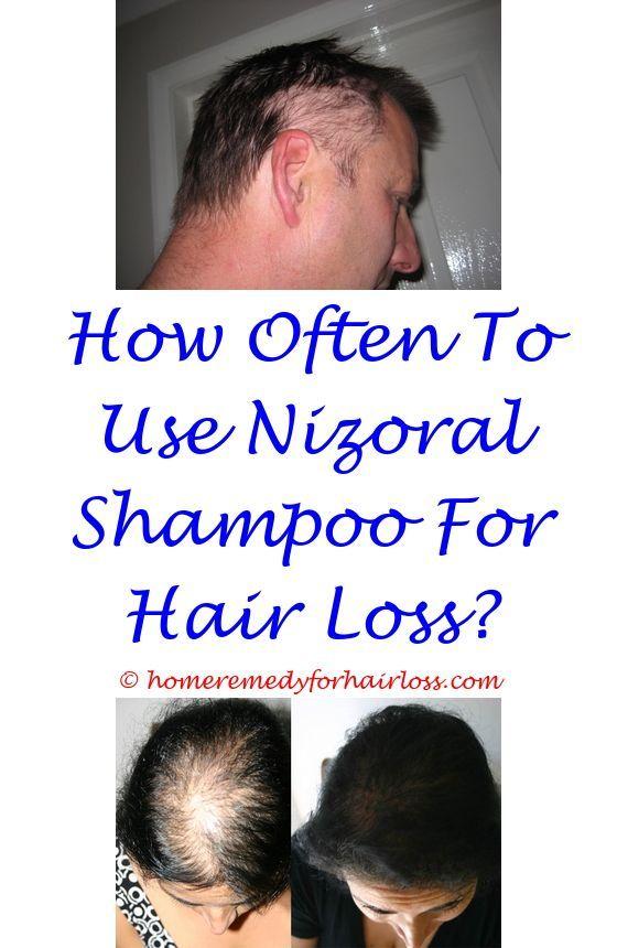 Black Seed Shampoo Hair Loss