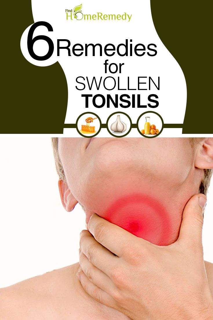 How To Get Rid Of Tonsilloliths Naturally