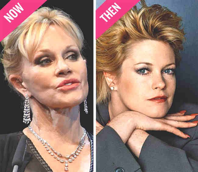 Melanie Griffith Plastic Surgery Before After