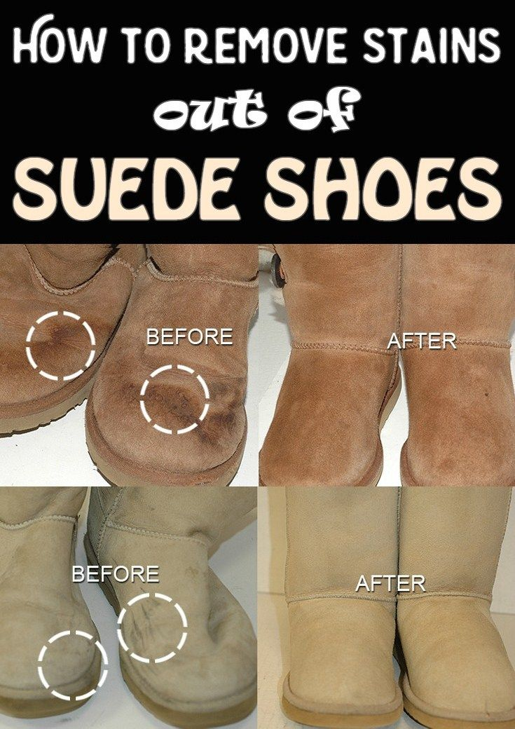 Learn how to remove stains out of suede shoes.