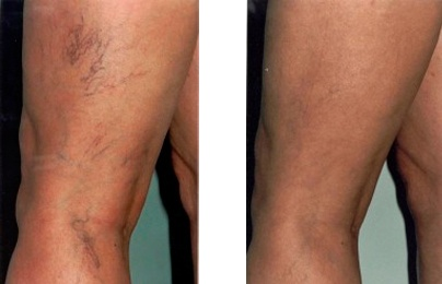 VariClear results. Non surgical spider vein removal! Why didn't I know about this forever ago?