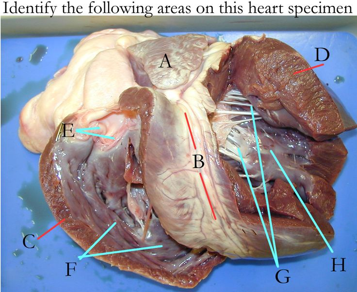 7 best images about Gross anatomy on Pinterest